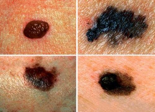 Mutirão Dermatológico 2015